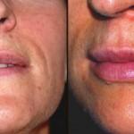 Preenchimento labial com ácido hialurónico