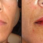 Preenchimento nasolabial com ácido hialurónico