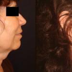 Caso 1 - Lifting cervicofacial