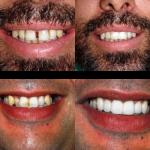 Caso 2 – Reabilitação com facetas e implantes