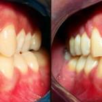 Caso 2 - Ortodontia